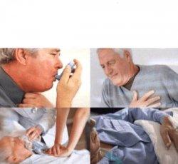 Искусственное дыхание
